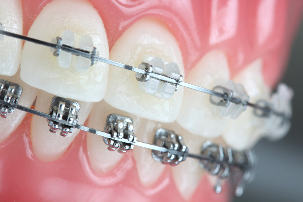Fixed Lingual with ceramics braces